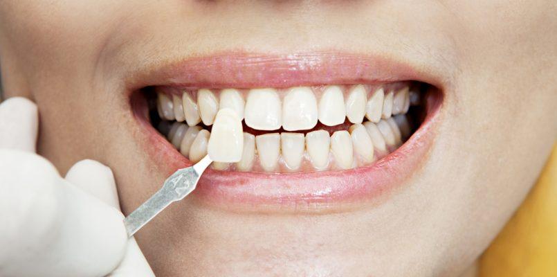 Улыбка на миллион - винирование зубов